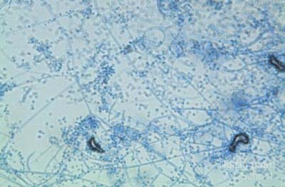 Trichophyton sp. ringworm