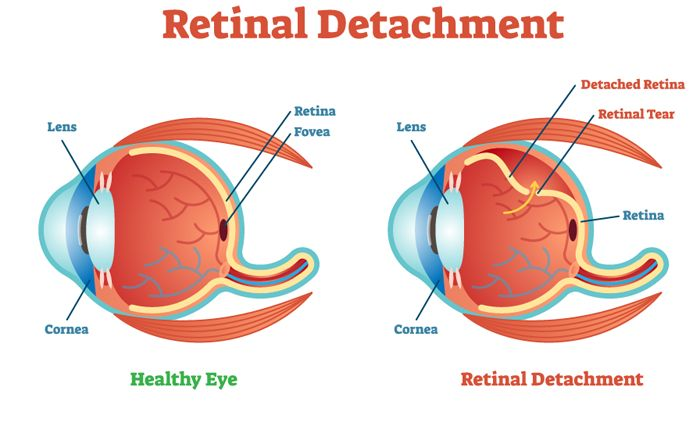 Retinal detachment in cats