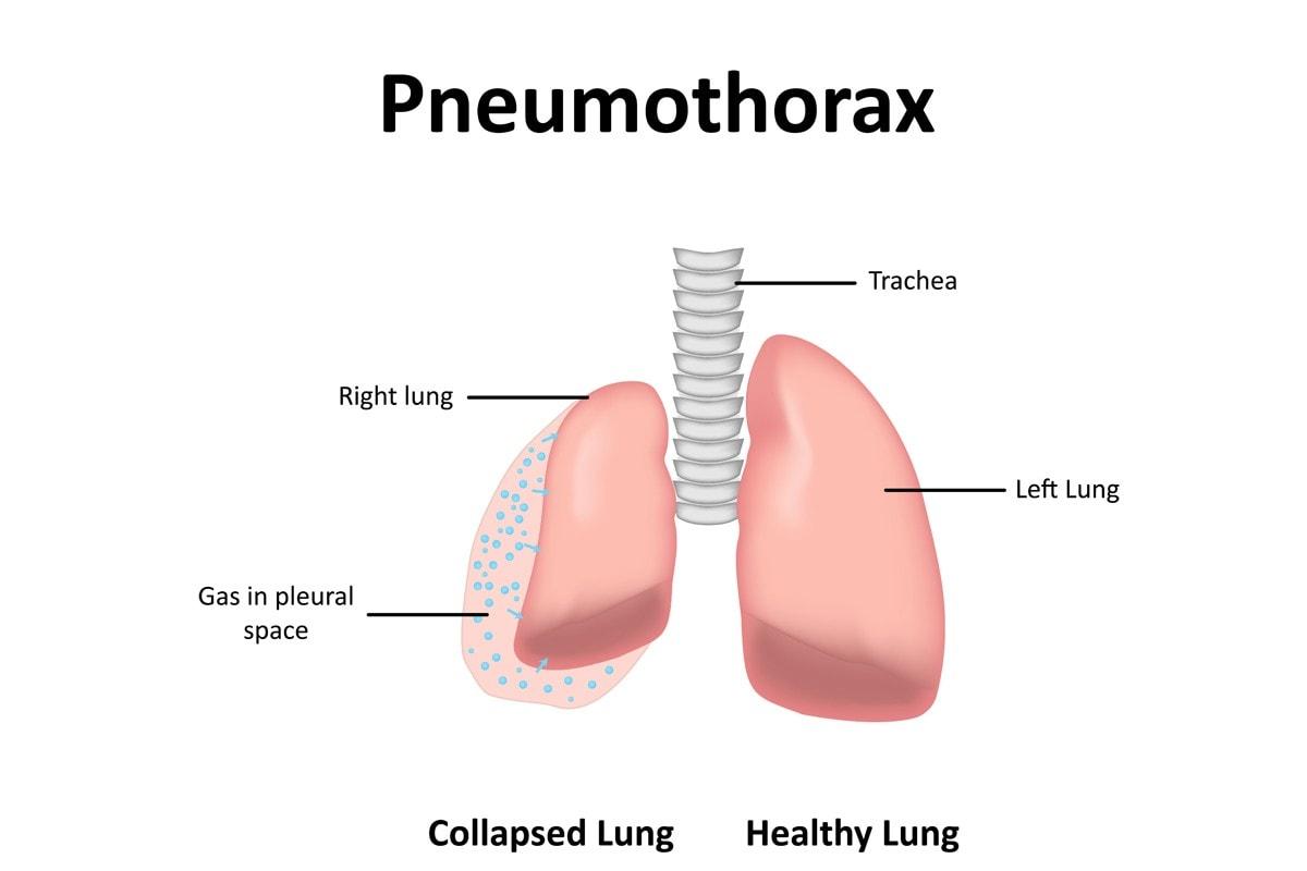 Pneumothorax in cats