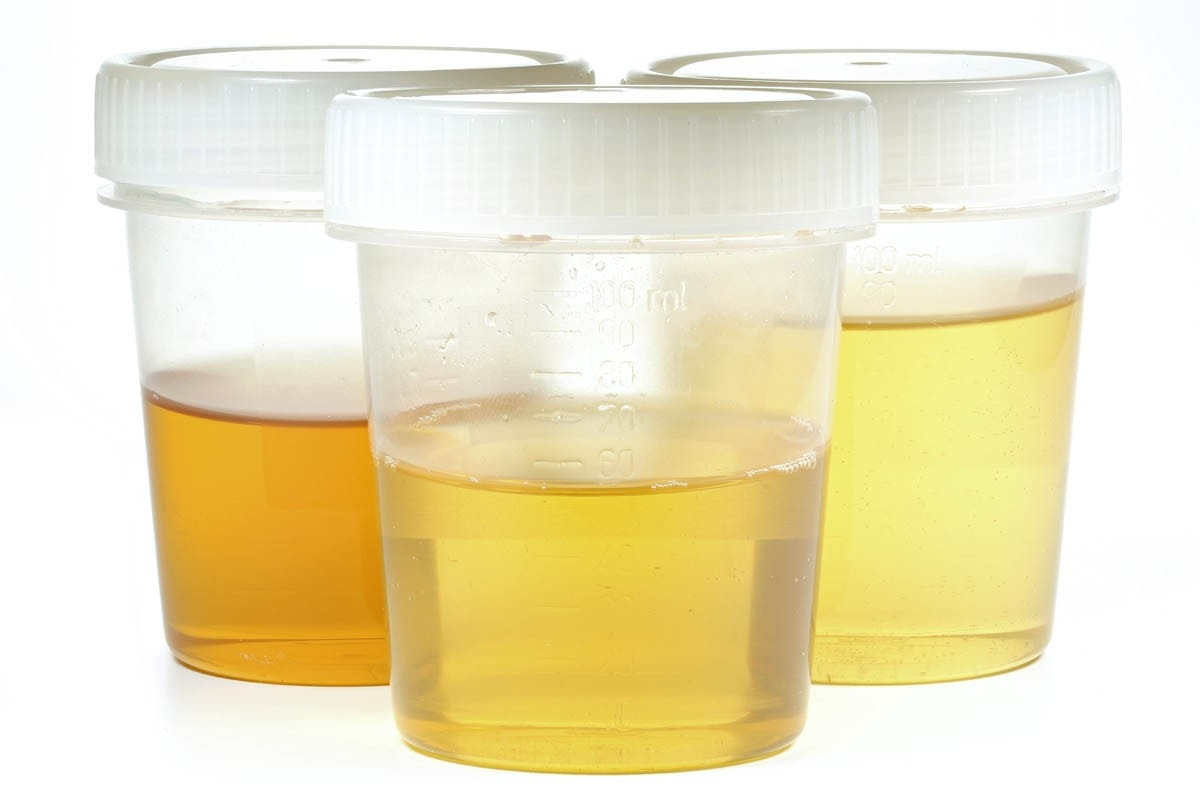 Collecting a cat urine sample