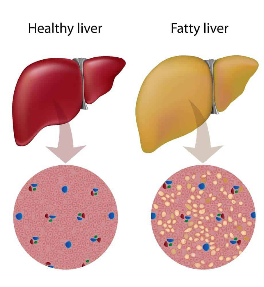 fatty liver disease in cats