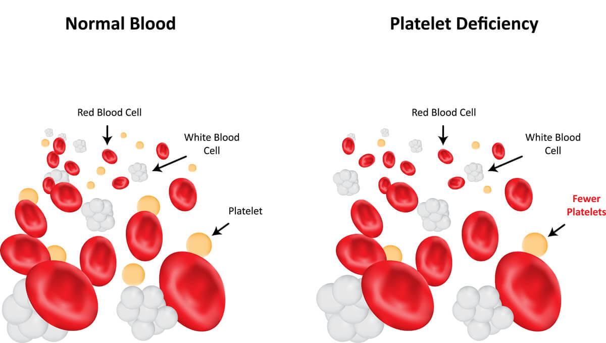 Low blood platelets in cats