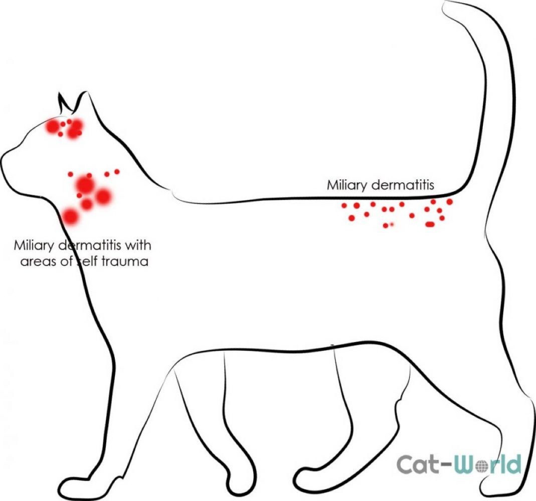 Miliary dermatitis