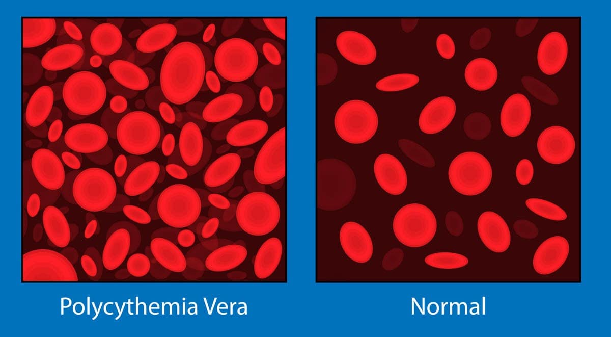 Polycythemia in cats