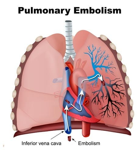 Pulmonary thromboembolism in cats