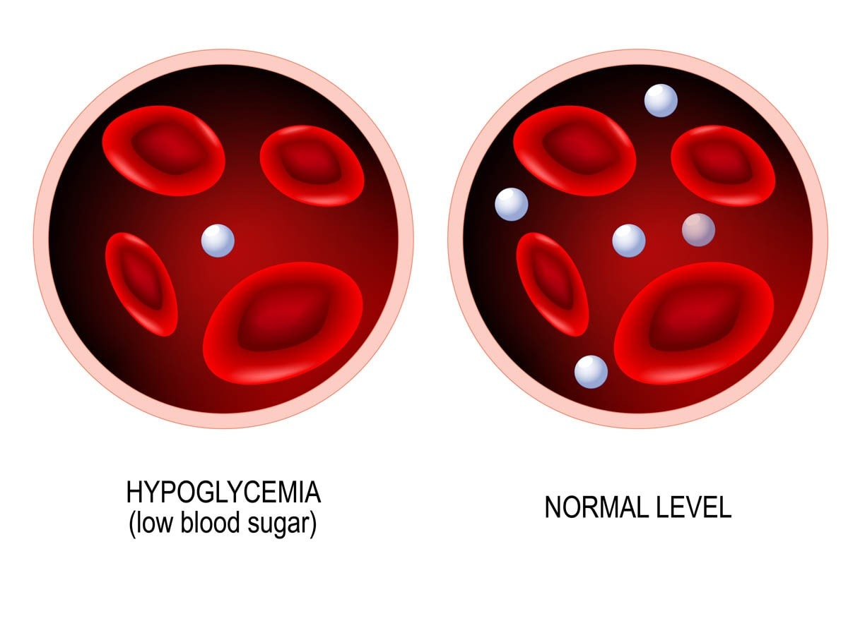 What is hypoglcemia?