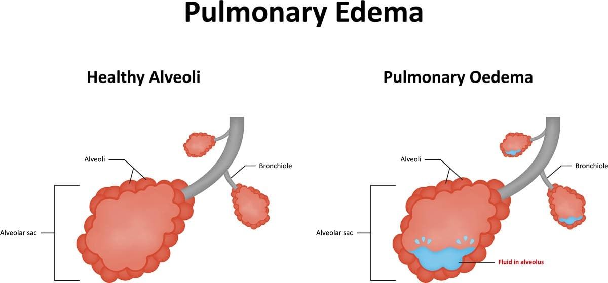 What is pulmonary edema?