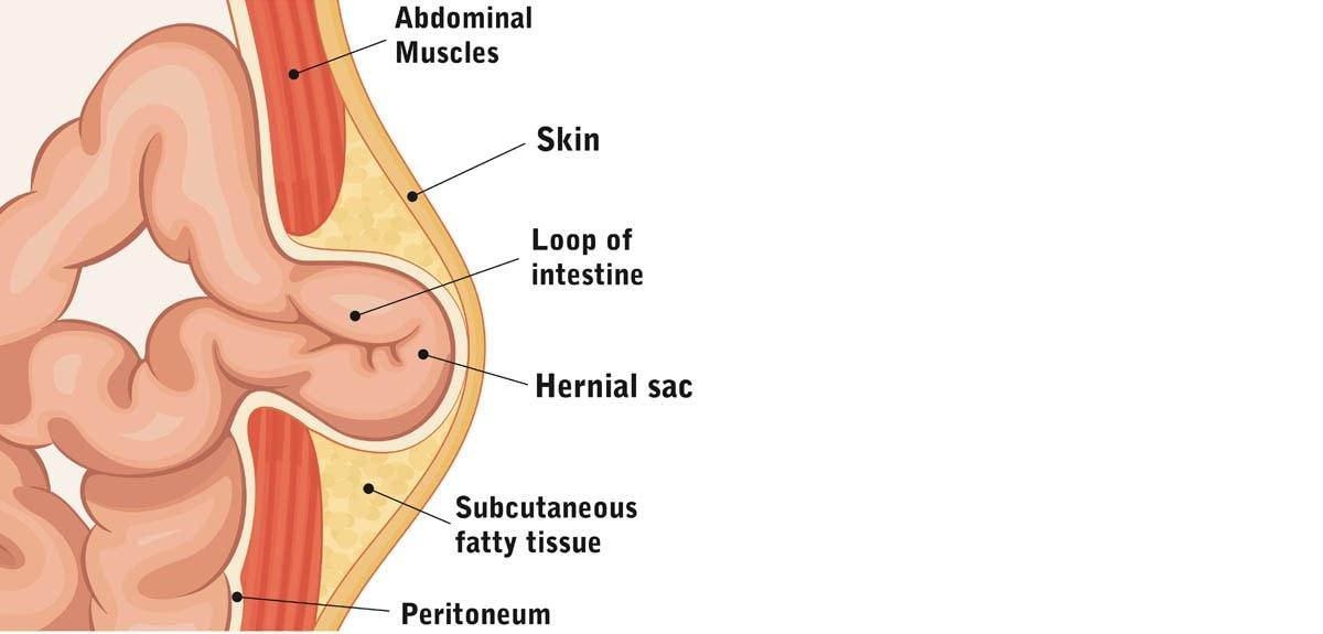 Umbilical hernia in cats