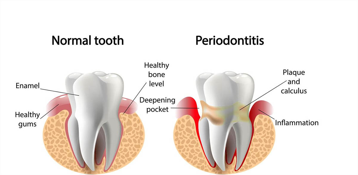 Normal gums compared to gum disease