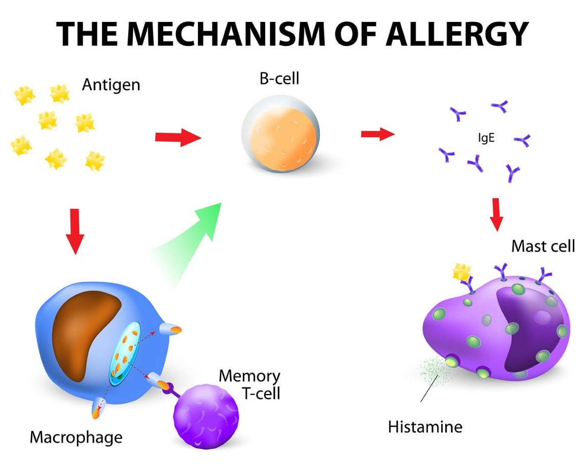 Mechanism of an allergy