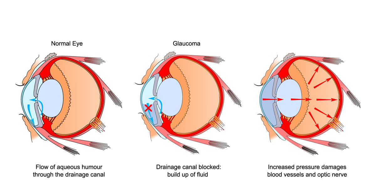 How glaucoma develops