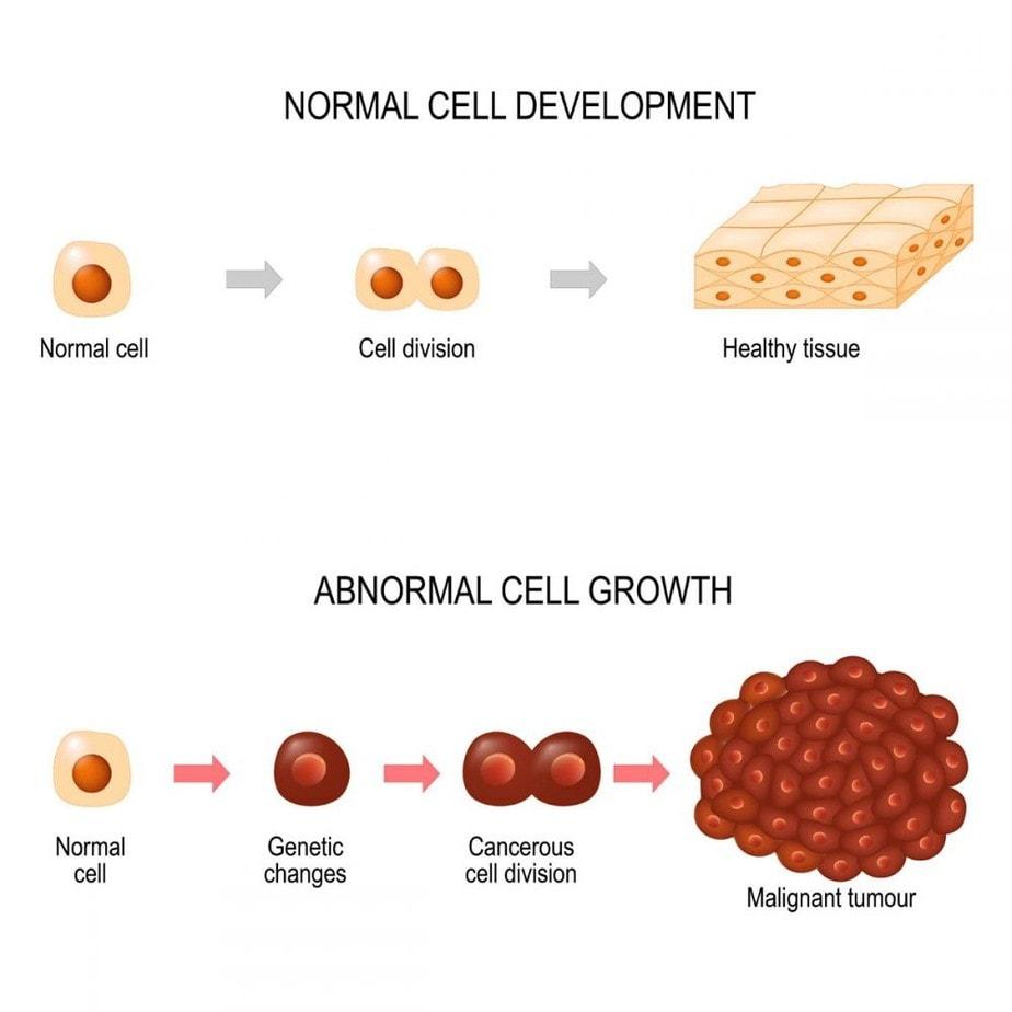 How cancer develops