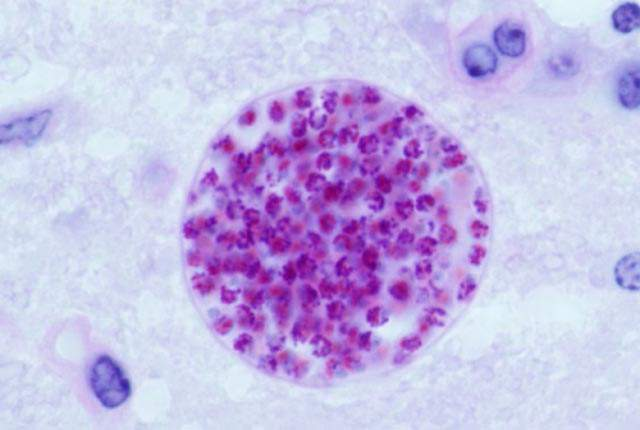 Toxoplasma Gondii cyst in a mouse brain.