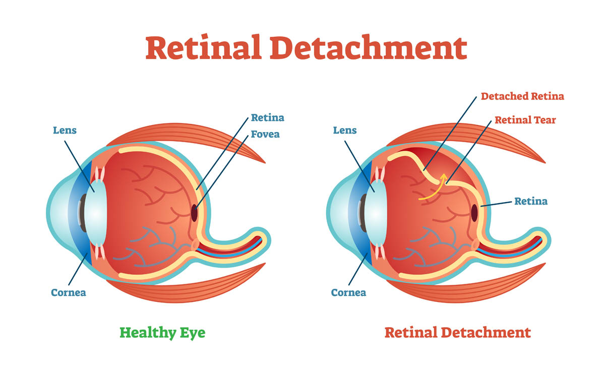 Retinal detachment in cats