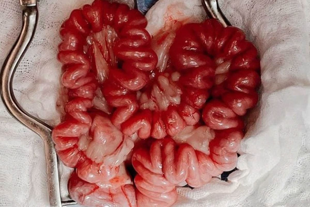 Plication of the intestines